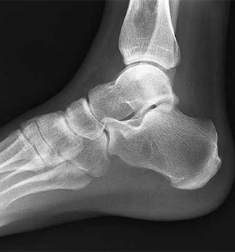 Foot and Ankle X-Ray